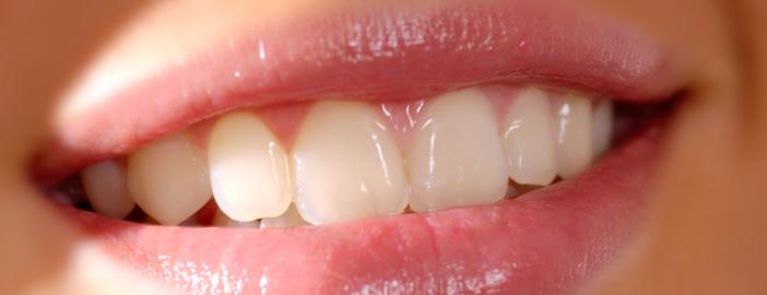 dentalbonding