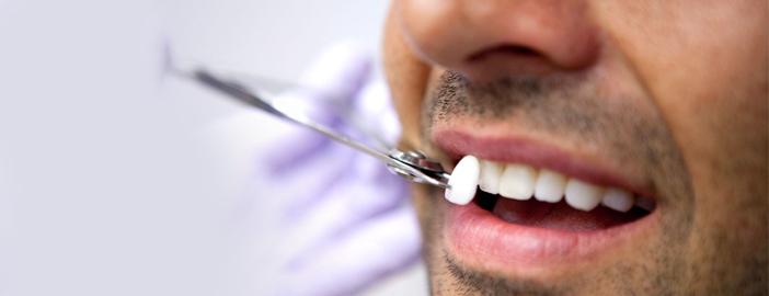 dentalvenners