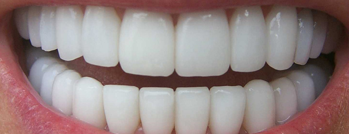 toothcolored