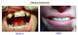 Dental Implants in titanium