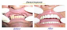 Dental Imlants, full mouth