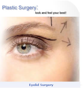 Eyelid surgery, upper and lower eyelids